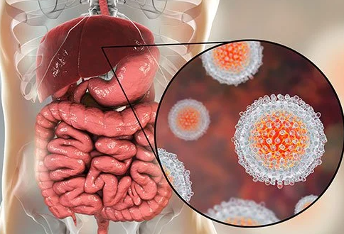 hepatitis A treatment